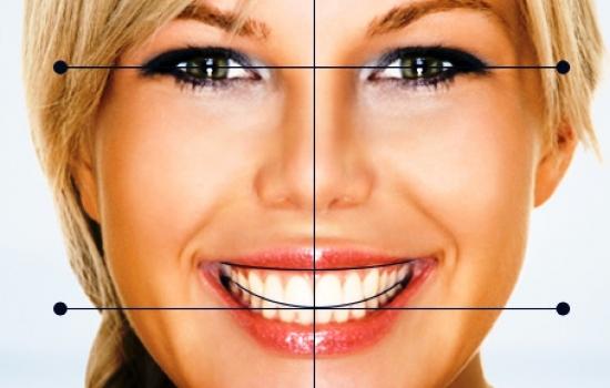 اصلاح طرح لبخند به سبک هالیوود