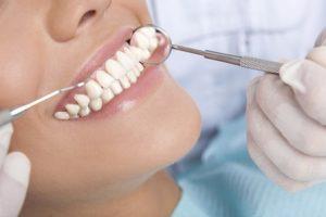 سوالاتی درباره لمینت دندان