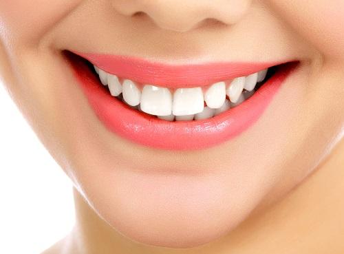 دندانپزشکی زیبایی, طوفانی در زیباسازی