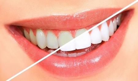 از سلامت دهان خود چه می دانید؟