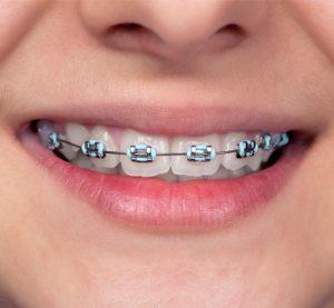 ارتودنسی معجزه نظم و زیبایی دندان