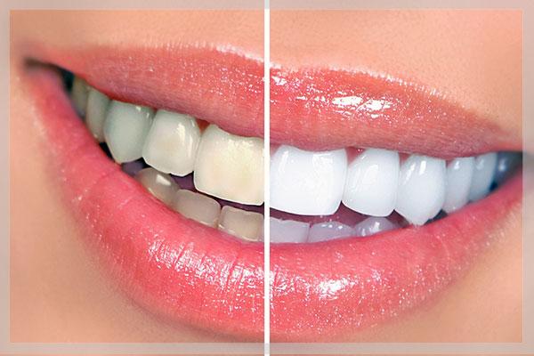 بلیچینگ دندان,سفید کردن دندان,سفید کردن دندان با لیزر