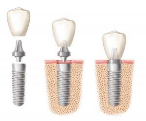 مشاوره ایمپلنت دندان