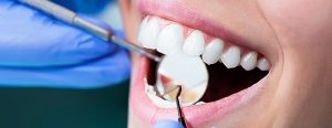بایدها و نبایدهای لمینت دندان