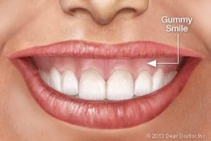 درمان و علت لبخند لثه ای