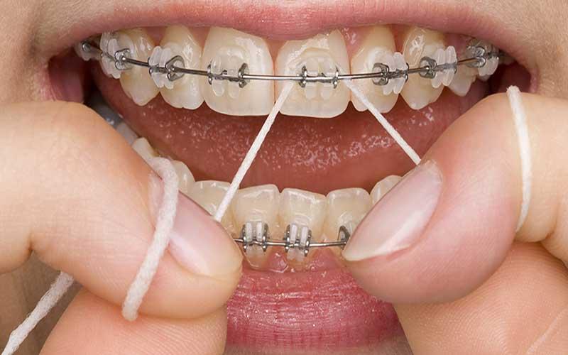 مراقبت از دندان های ارتودنسی شده