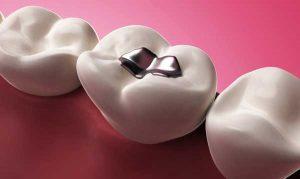 آمالگام برای پرکردن دندان