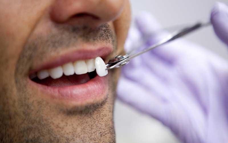 درمان اوربایت با لمینت دنداندرمان اوربایت با لمینت دندان