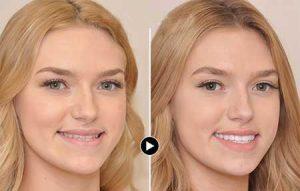 درمان اوربایت با لمینت دندان