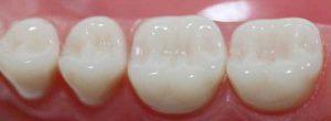 سرامیک از جمله مواد پرکردنی دندان