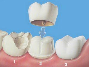 چه موقع روکش دندان باید کرد
