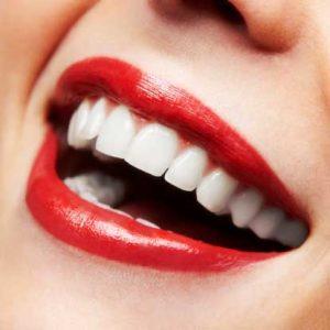 سفید کردن دندان به روش خانگی
