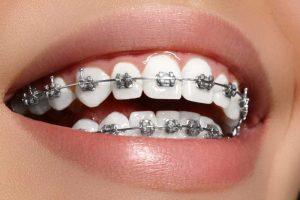 ارتودنسی دندان با دندان های پرکرده
