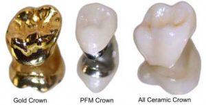 انتخاب روکش دندان