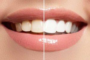 آیا سفید کردن دندان ایمن است؟