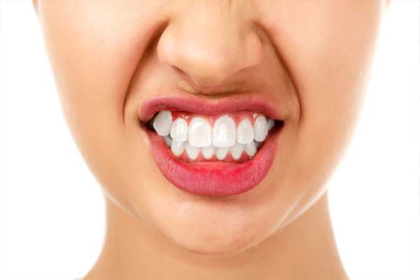 محافظ دندان برای دندان قروچه