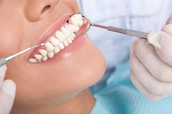 لمینت دندان یا ایمپلنت