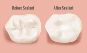 قبل و بعد از سیلانت دندان
