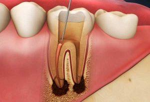 اندو دندان