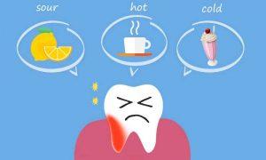 حساسیت دندان ها بعد از جرمگیری