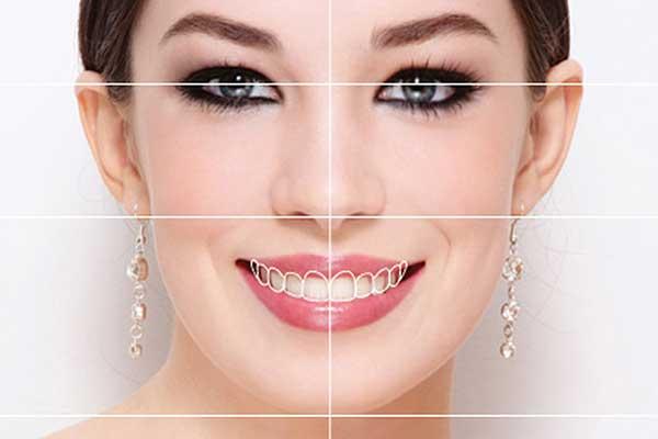 طراحی لبخند دیجیتالی چیست
