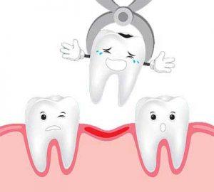 بروز سوکت های خشک بعد از کشیدن دندان