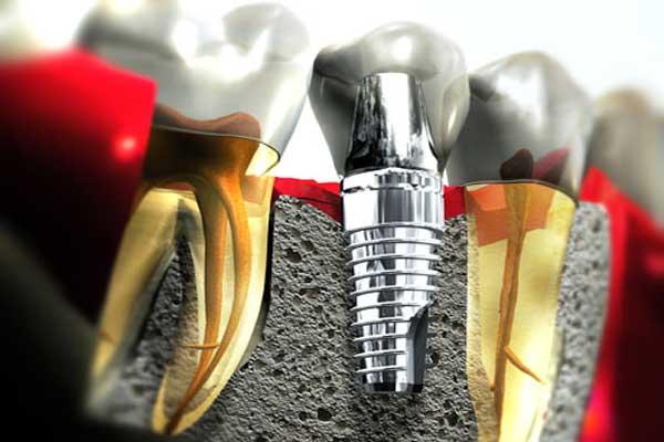 تکنیکی جدید در ایمپلنت دندان