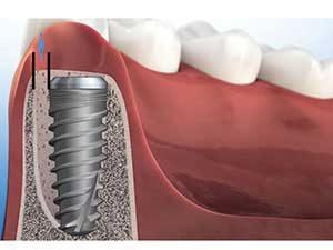 تکنیک جدید در ایمپلنت دندان