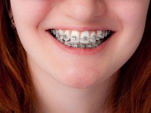 پر کردن دندان قبل از ارتودنسی