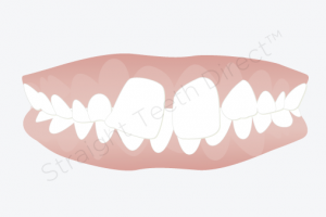 دندان های جلویی و کناری