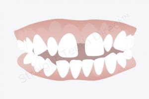دندان های جلویی