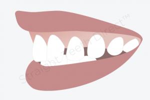 دندان های نیش