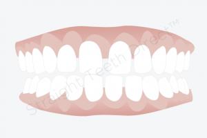 فاصله بین همه دندان ها