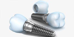 مینی ایمپلنت و ایمپلنت دندان