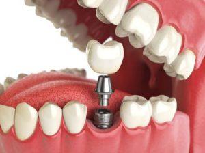 جلوگیری از تحلیل استخوان با ایمپلنت دندان