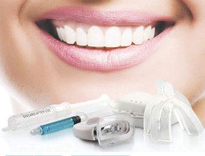 متدهای سفید کردن دندان