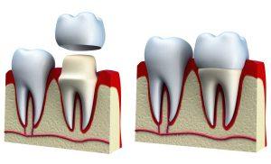 ویژگی های روکش دندان