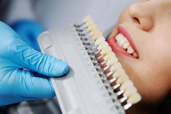 جایگزین لمینت دندان
