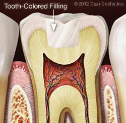 پرکردن دندان با کامپوزیت