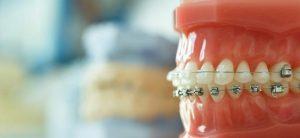 ارتودنسی دندان یا پرسلین ونیرها
