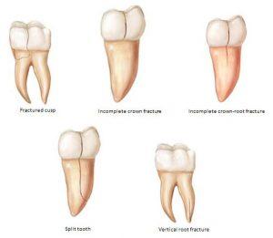 انواع ترک دندان