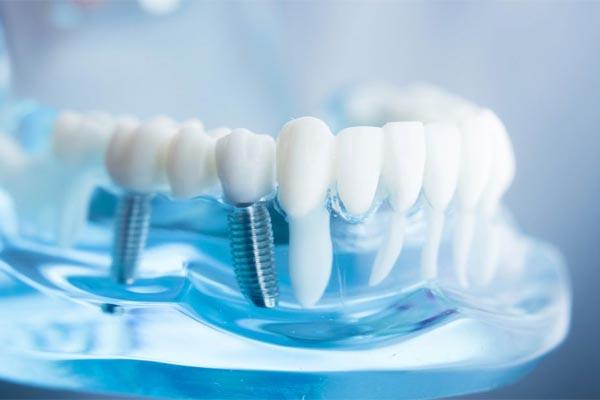 اهمیت ایمپلنت دندان