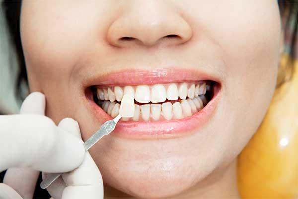 انواع لمینت های دندان