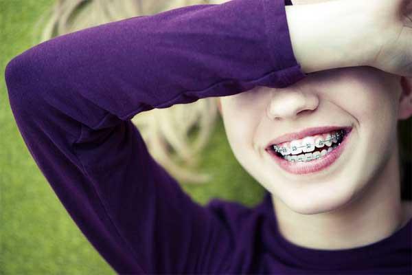 پیشگیری از ترس کودکان از ارتودنسی