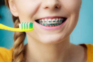 مسواک زدن بریس های دندان