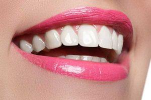 راه های داشتن لبخند زیبا